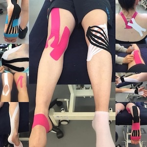 Physiotherapy Wandsworth Putney