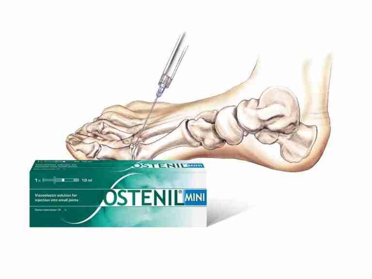 Ostenil Injection London