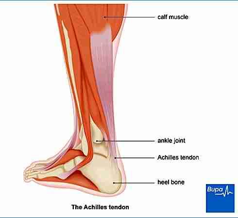 Achilles Pain - Wandsworth