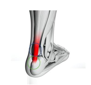 Achilles Tendinopathy-treatment-in-wandsworth