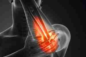 golfers-elbow-treatment-in-wandsworth
