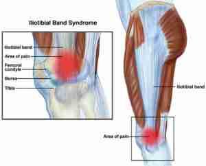 runner-knee-treatment-in-wandsworth