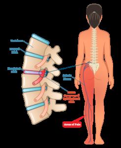 sciatica-anatomy-treatment-in-wandsworth