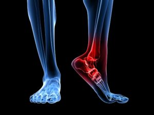foot and ankle problems treatment
